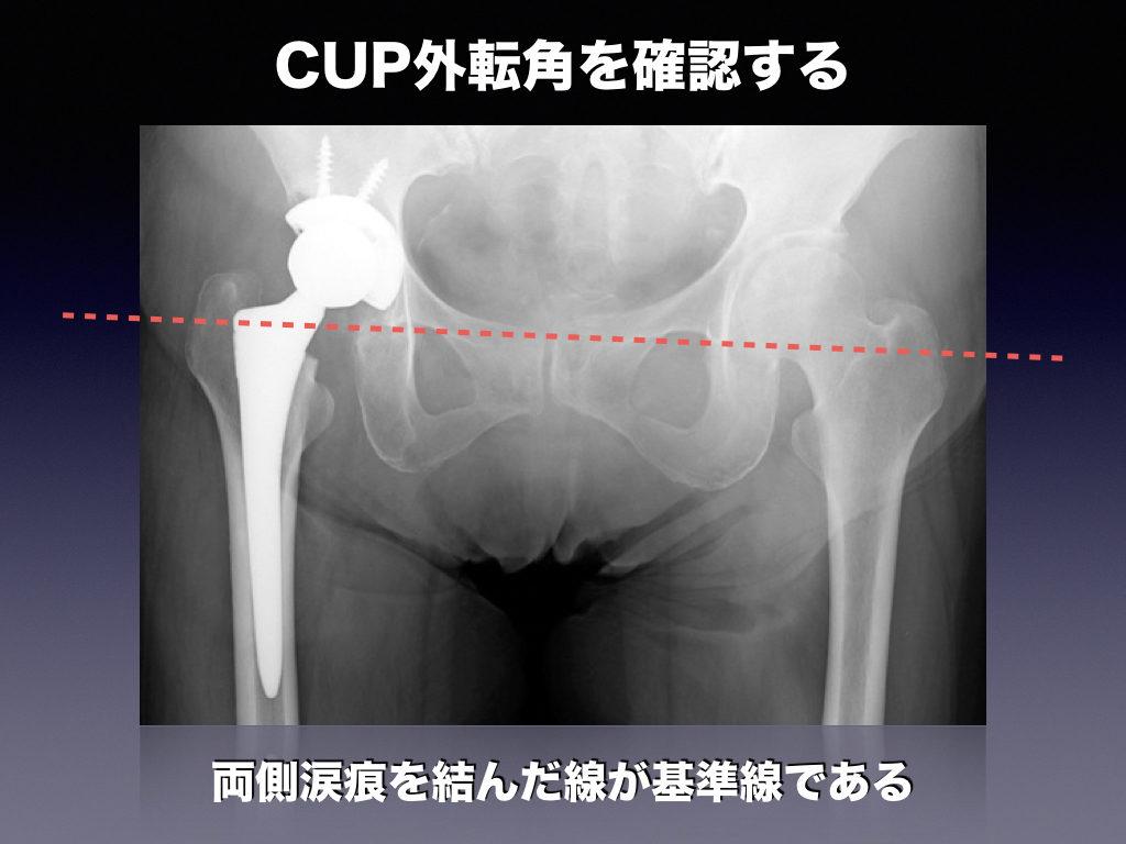 CUP外転角の例