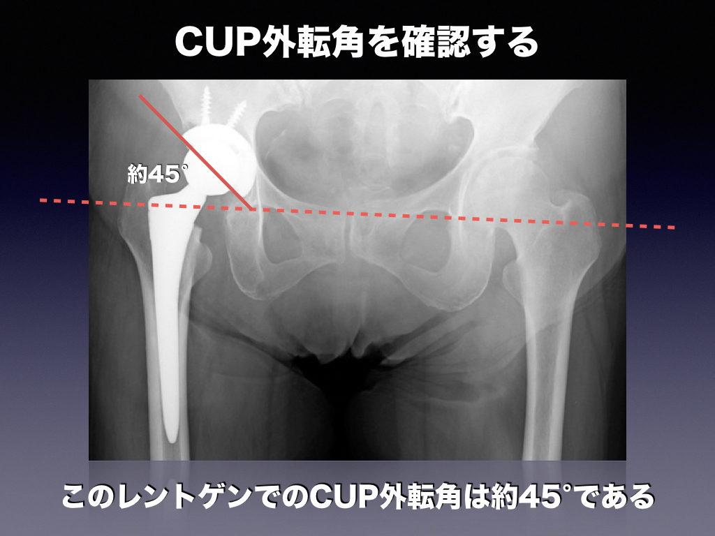 CUP外転角の解答