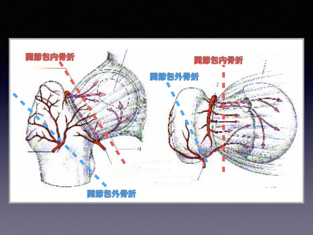 関節包内の回旋動脈