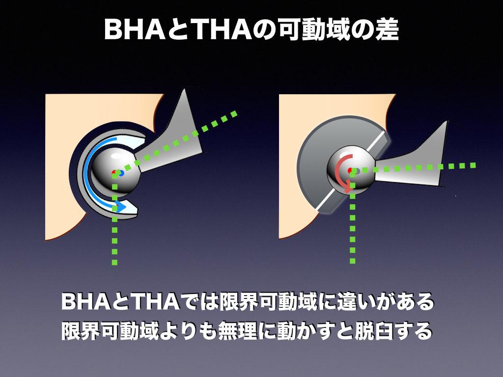 BHAとTHAの可動の違い