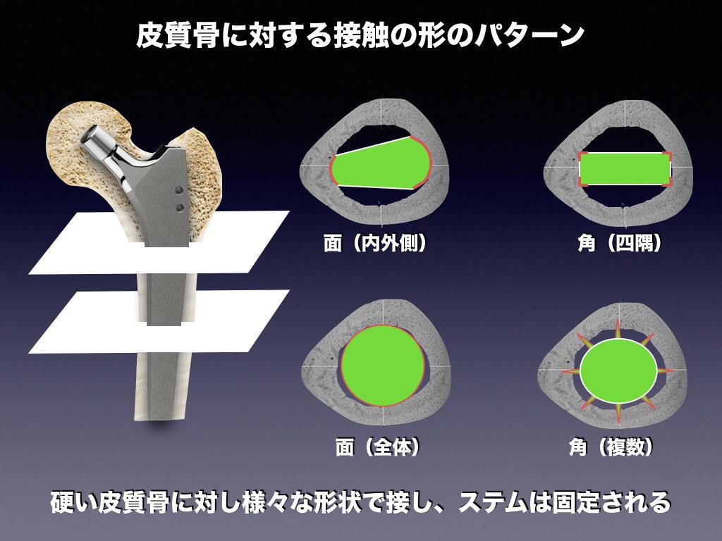 ステムの接触形状の種類