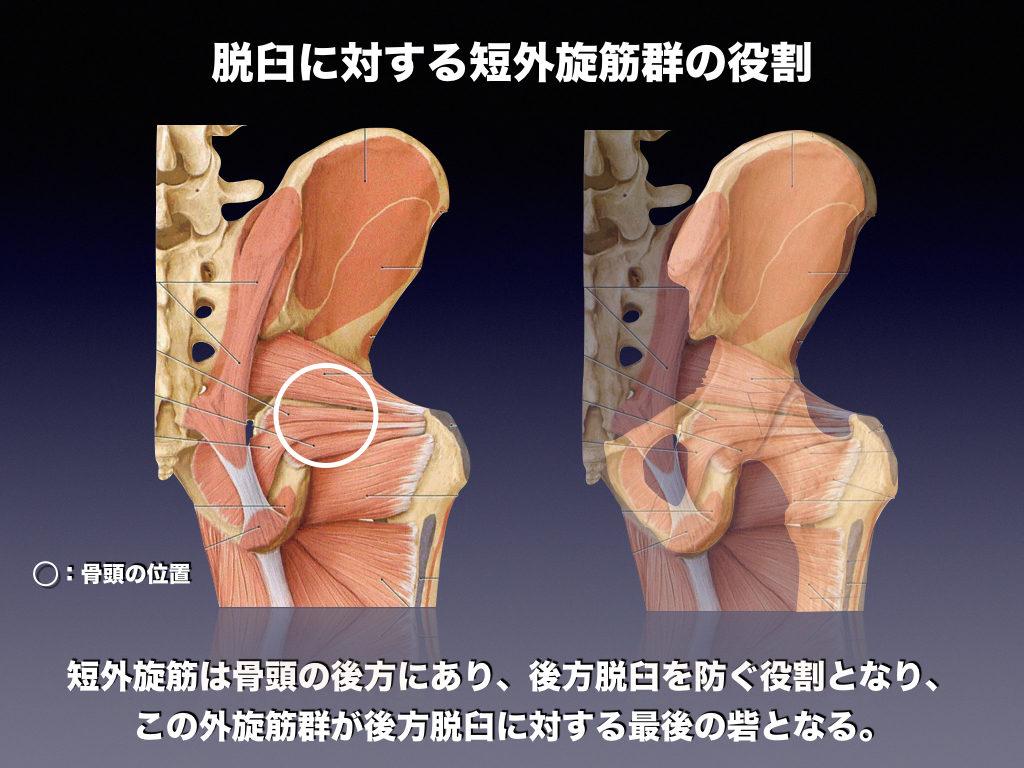 外旋筋の役割(骨頭の壁)