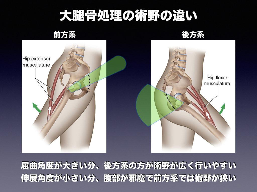大腿骨の処理の術野