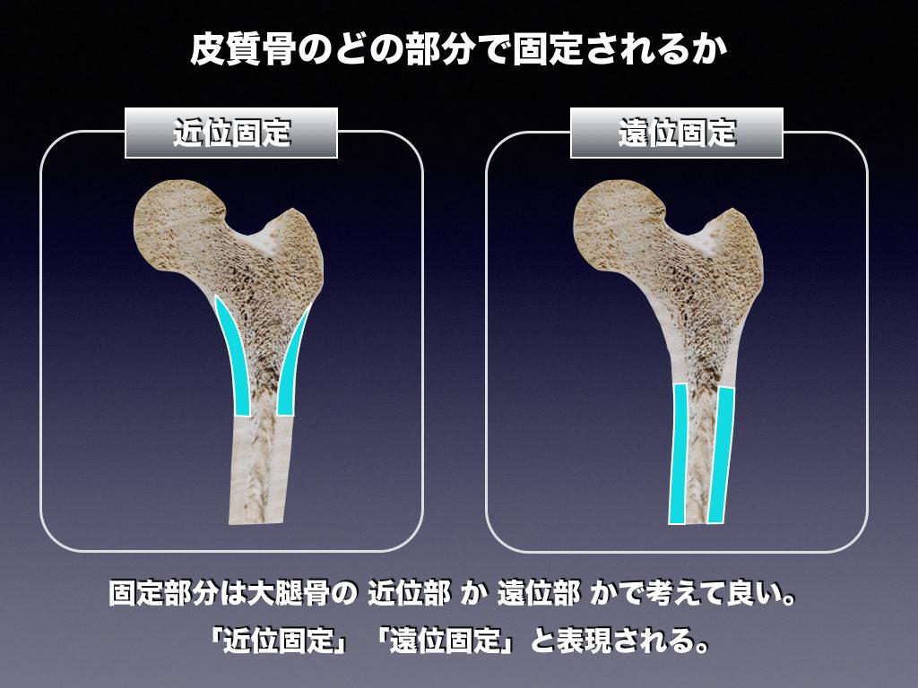 皮質における近位固定と遠位固定