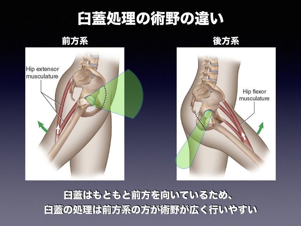 臼蓋の処理の術野