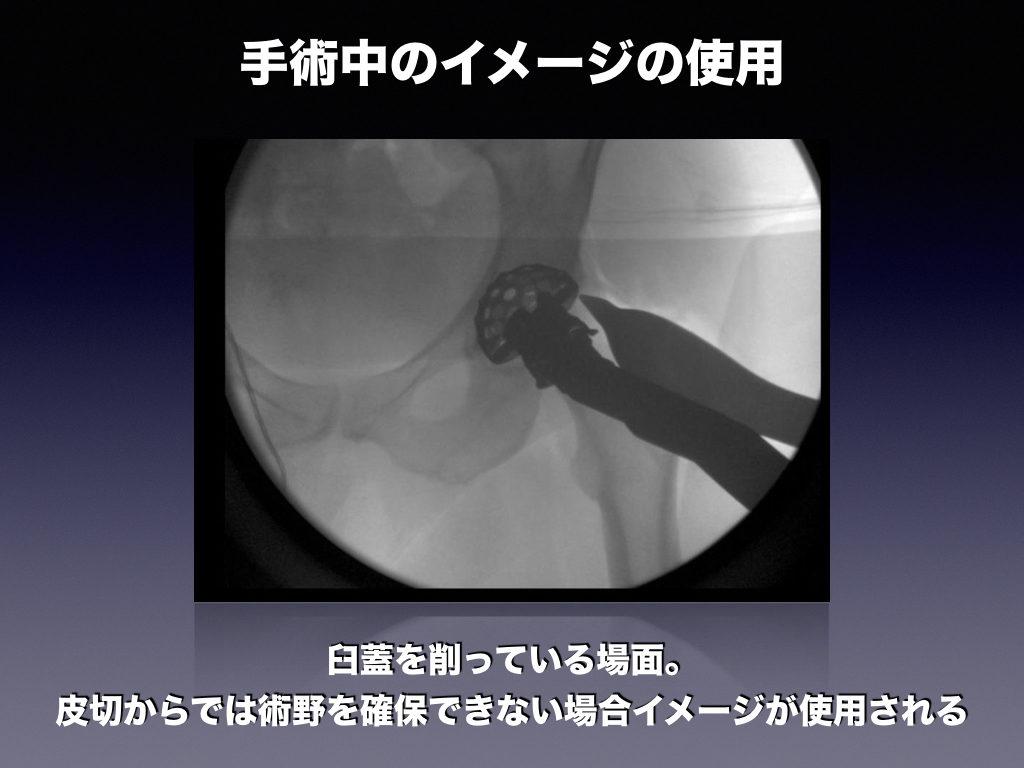 術中のイメージ使用(THA)