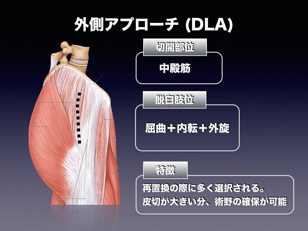 外側アプローチ(DLA)