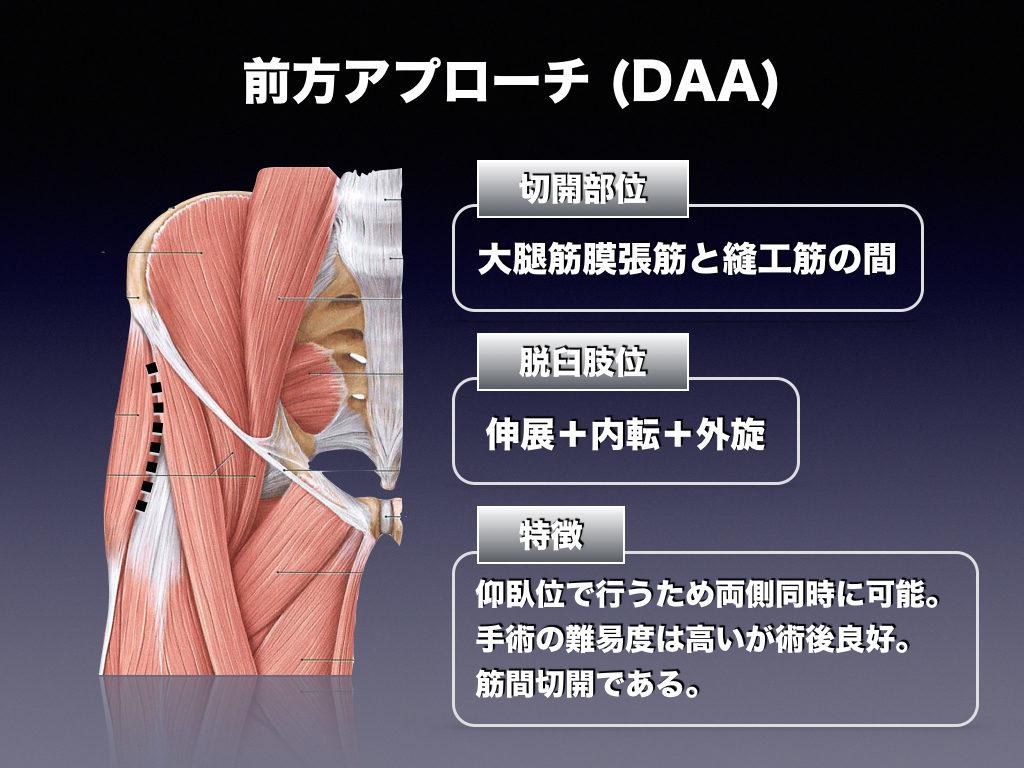 前方アプローチ(DAA)