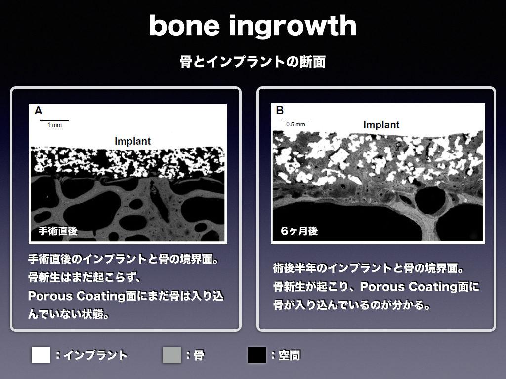 Bone ingrowth THA-stem