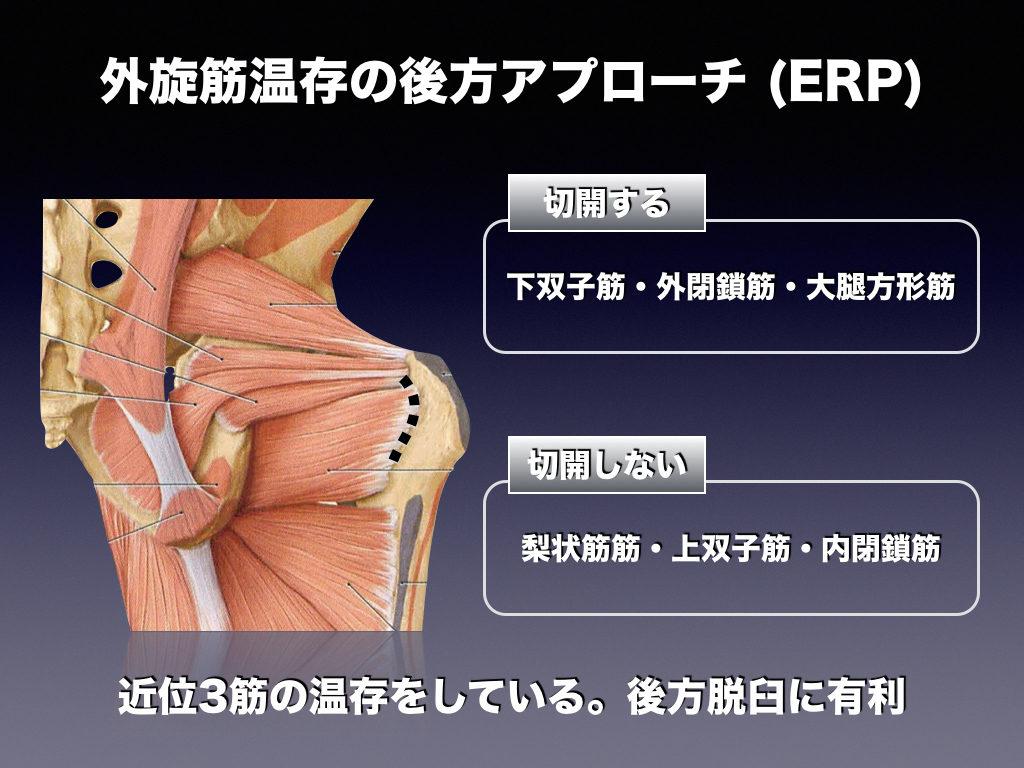 ERPアプローチ