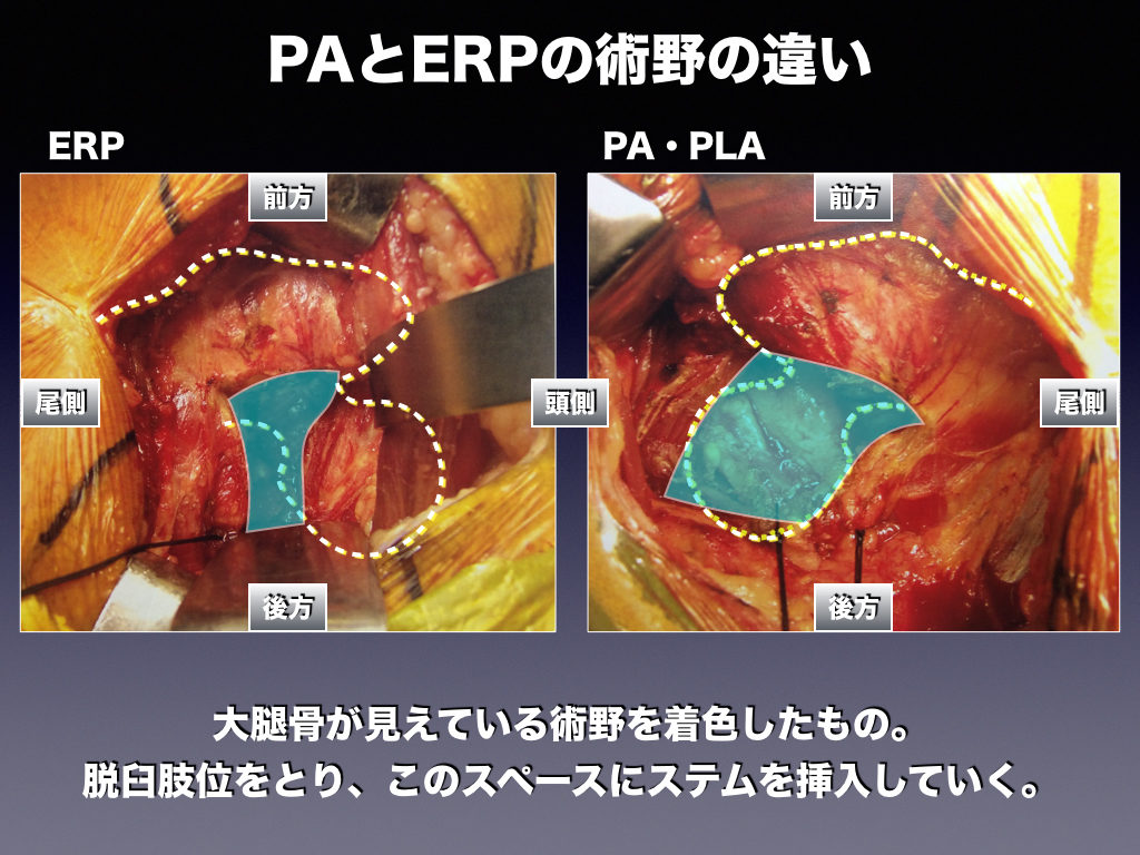 PAとERPの術野の違い(着色)