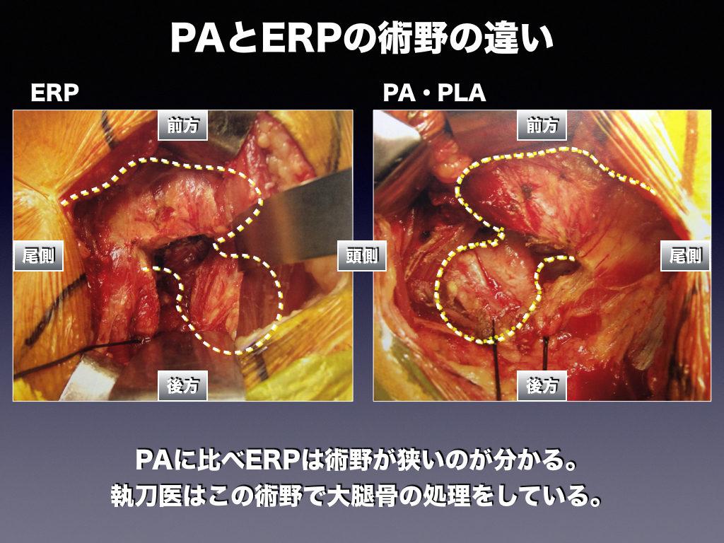 PAとERPの術野の違い