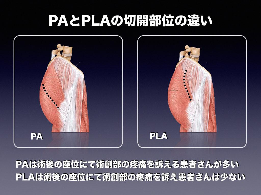 PAとPLAの違い