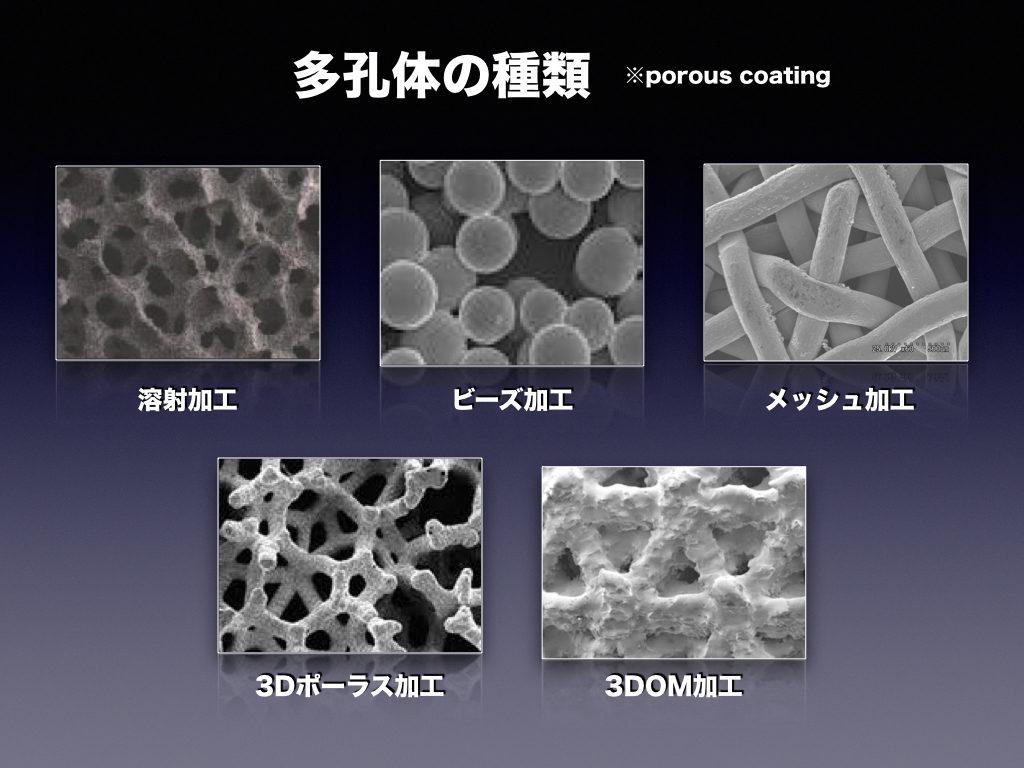 Porous加工-THA