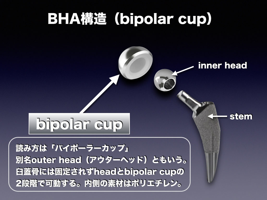 bipolar cup