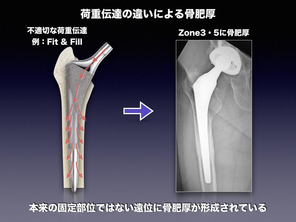 ステム遠位の骨肥厚(Fit&Fill)