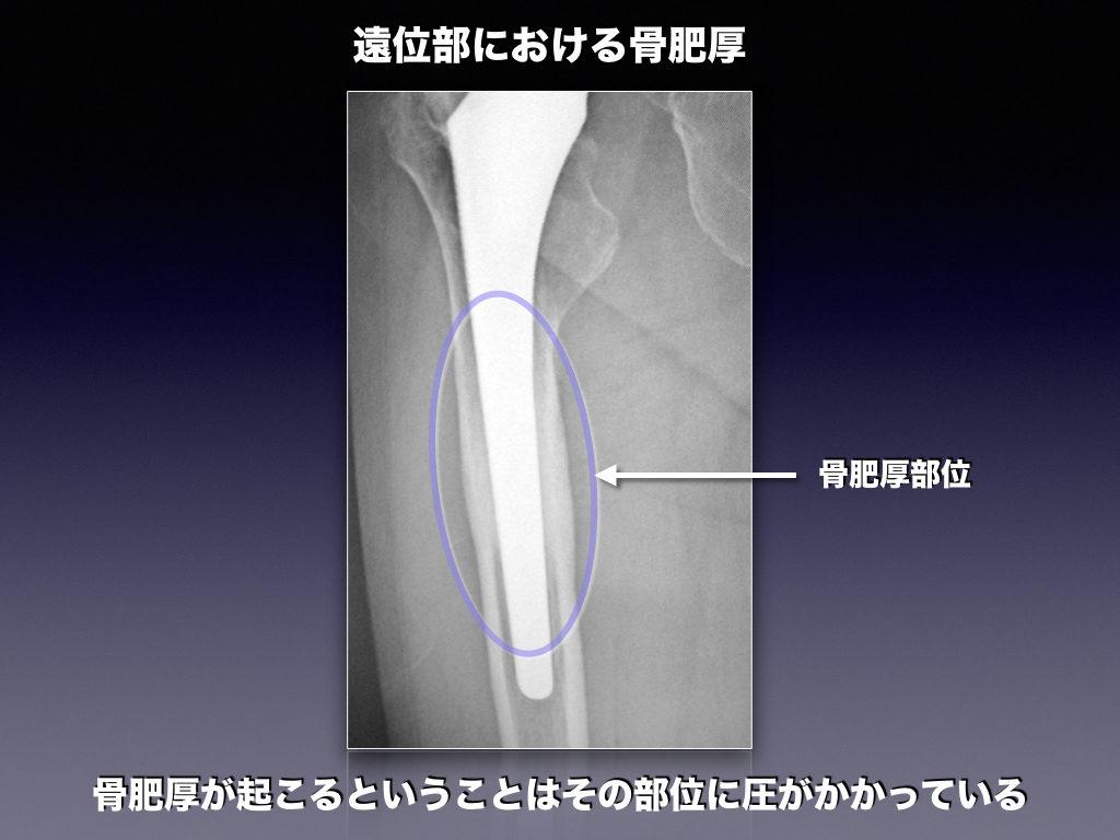 ステム遠位の骨肥厚