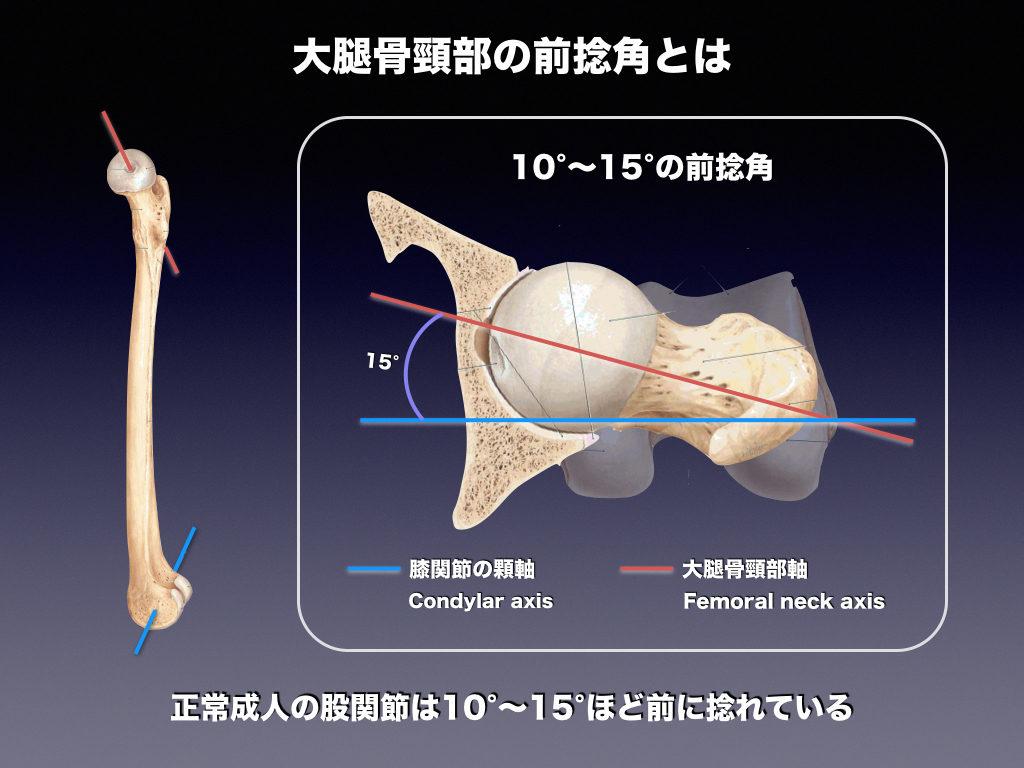ヒトの股関節前捻角