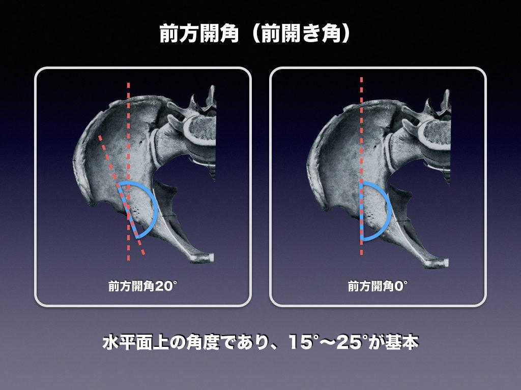 前方開角の説明THA