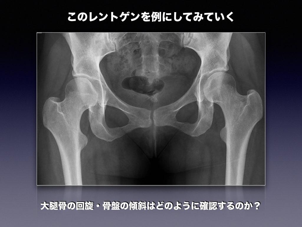 股関節APの例