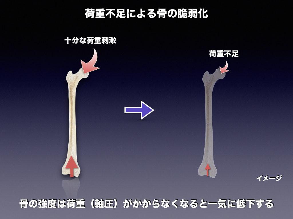 荷重不足による骨萎縮