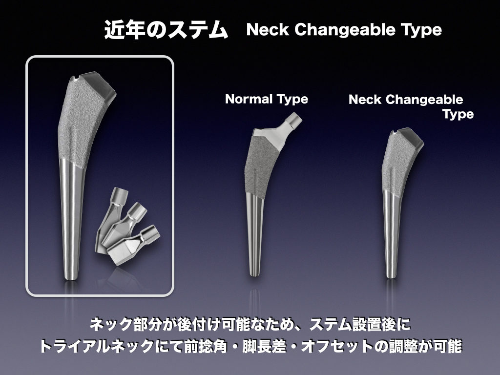 近年のステムNeck Changeable type