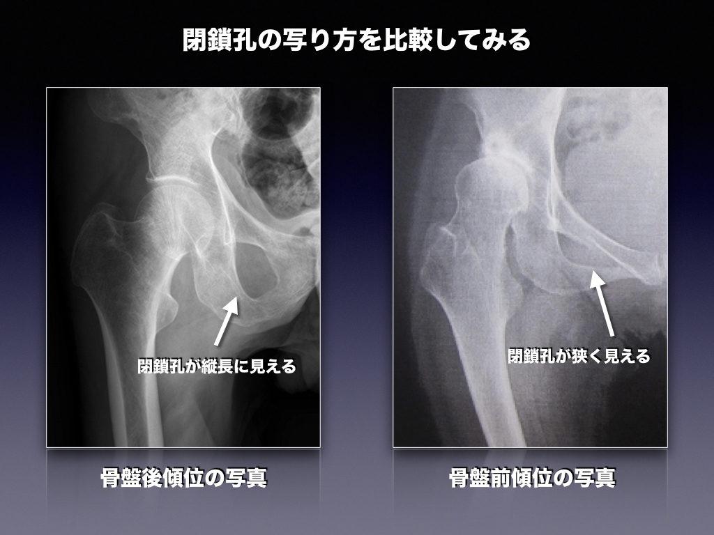 閉鎖骨の比較(股関節レントゲン)