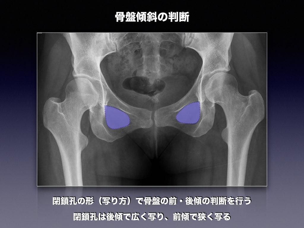 骨盤前後傾の確認レントゲン