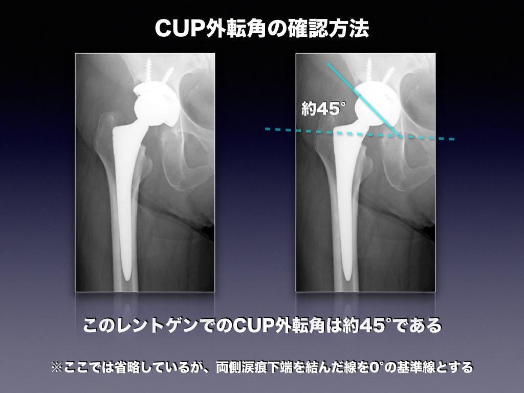 CUP外転角の確認方法THA