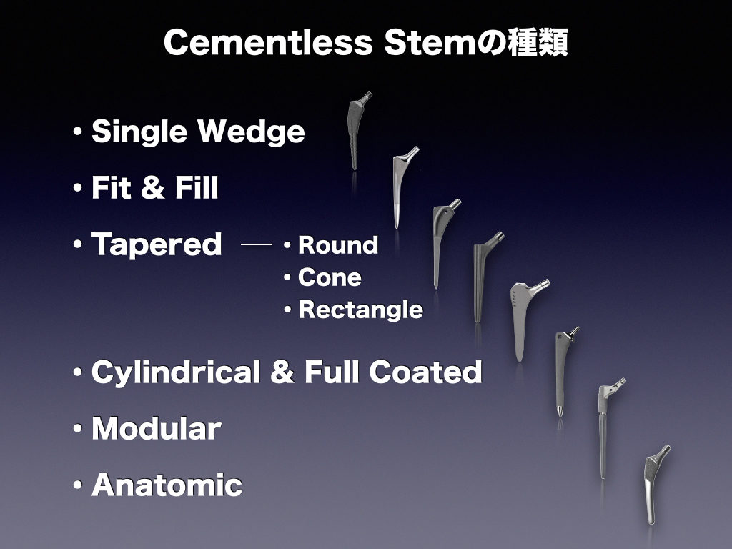 Cementless Stemの種類