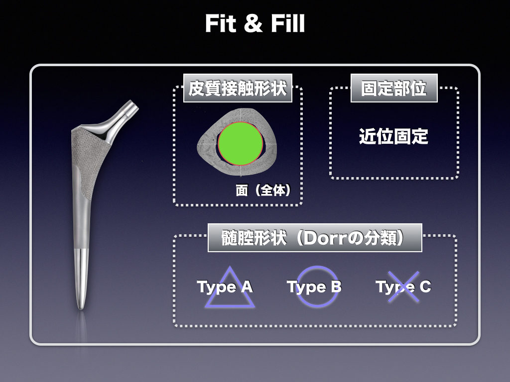 Cementless Stem(Fit & Fill)