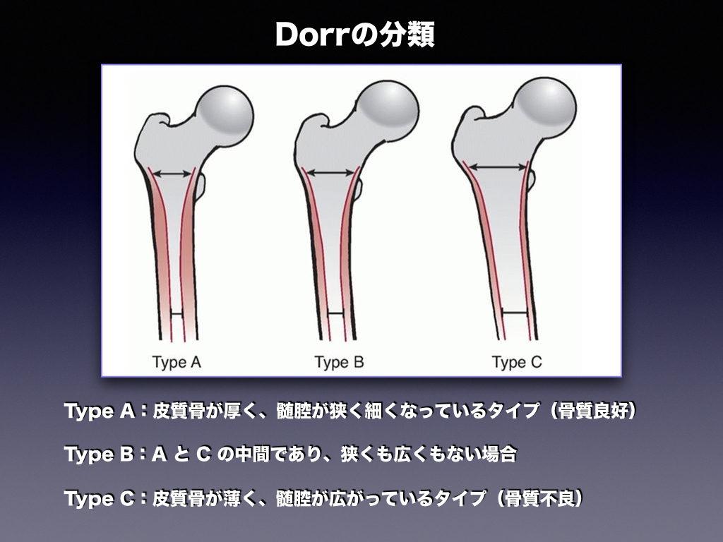 Dorrの分類とは