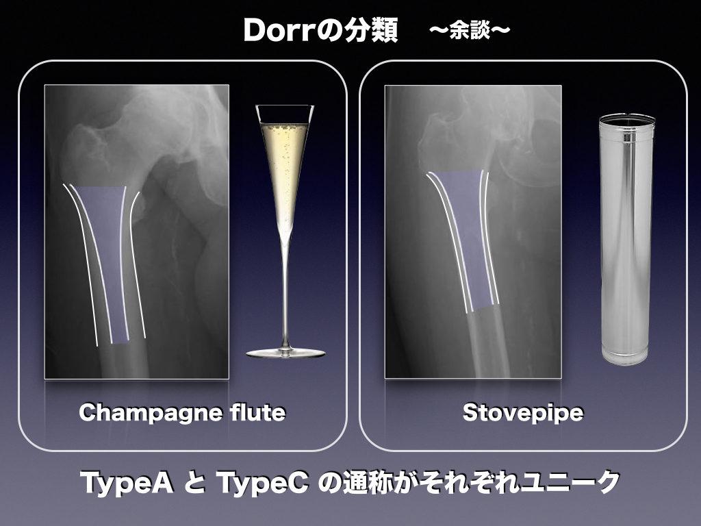 Dorrの分類(別名)