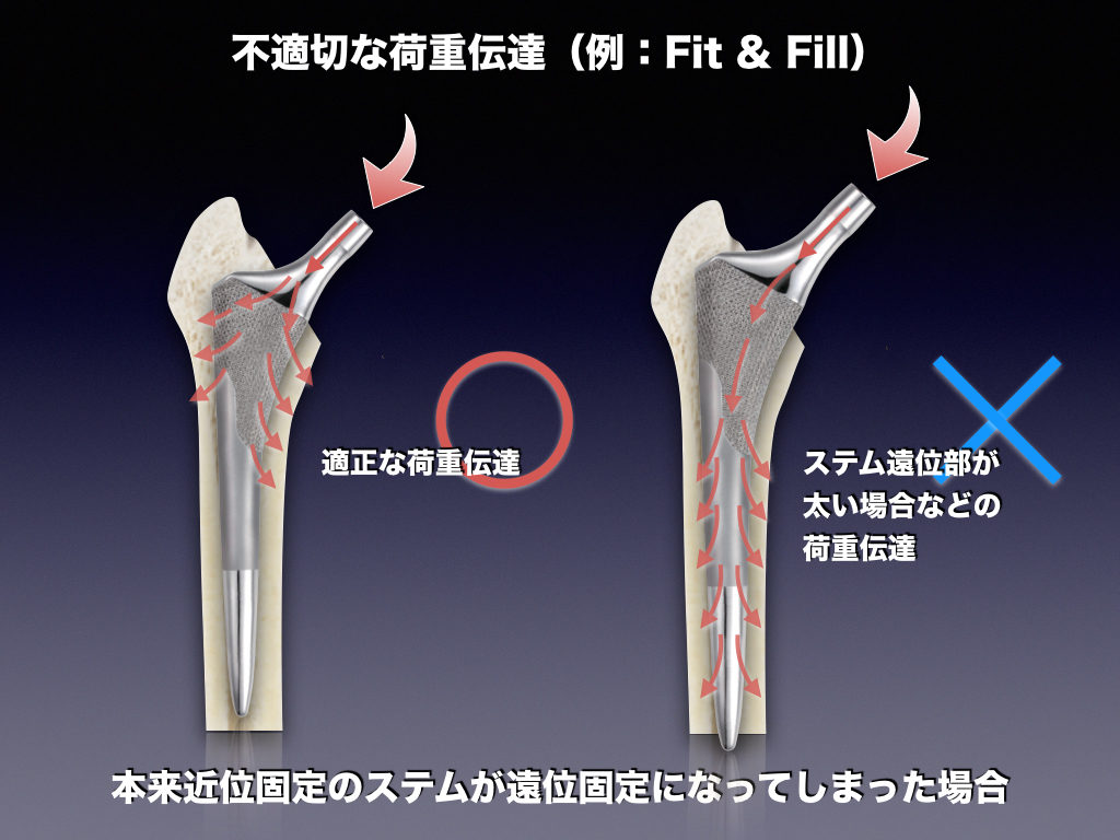 Fit&Fillでの不適切な荷重例