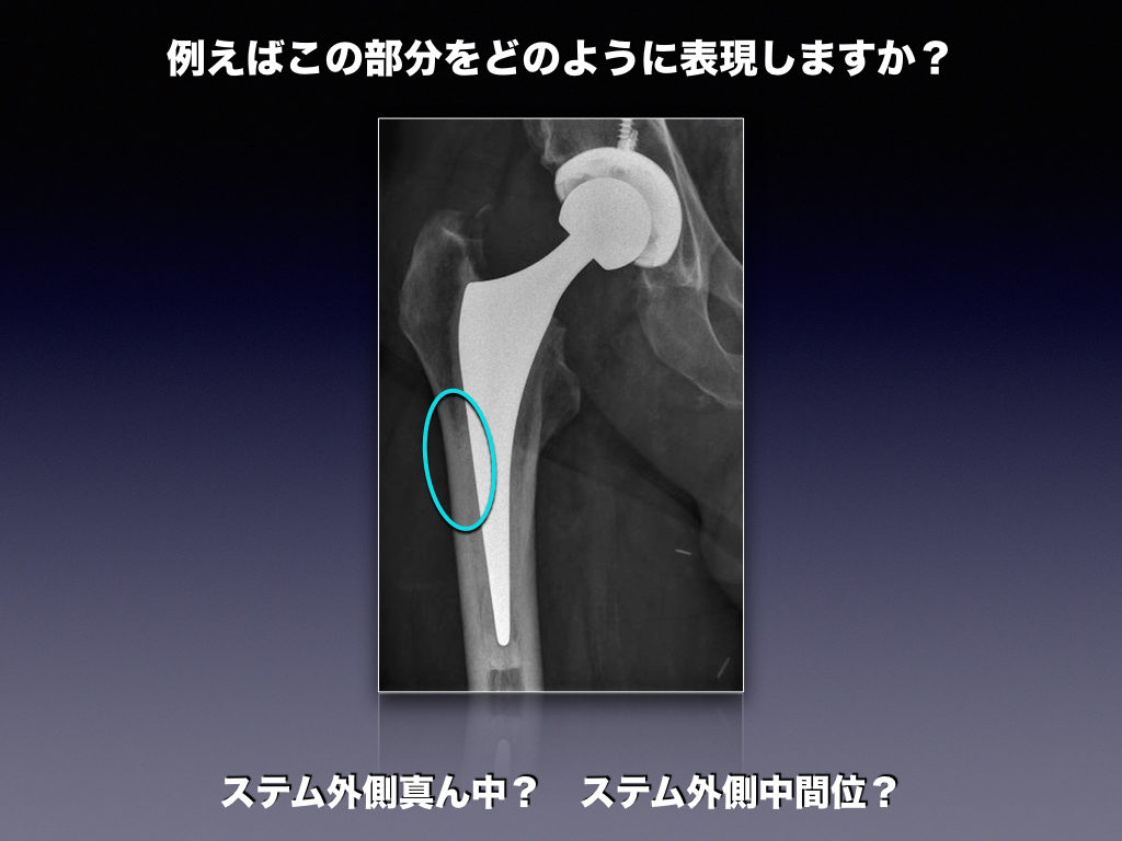 Hip Prosthesis Zoneの前説明
