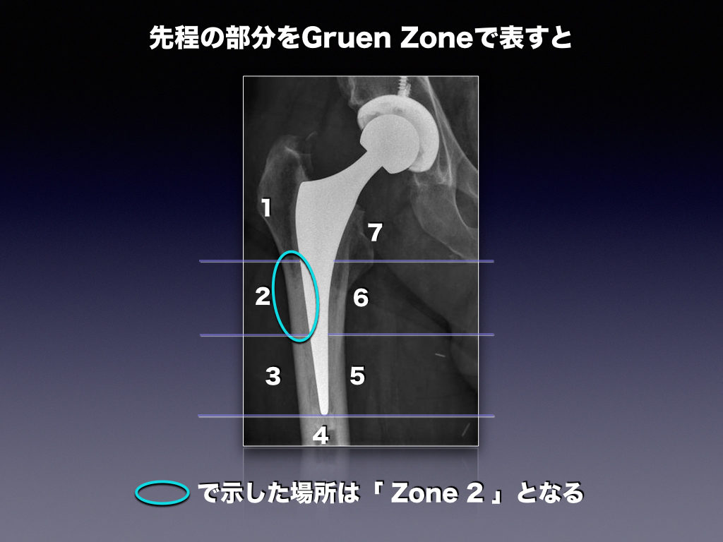 Hip Prosthesis Zoneの説明