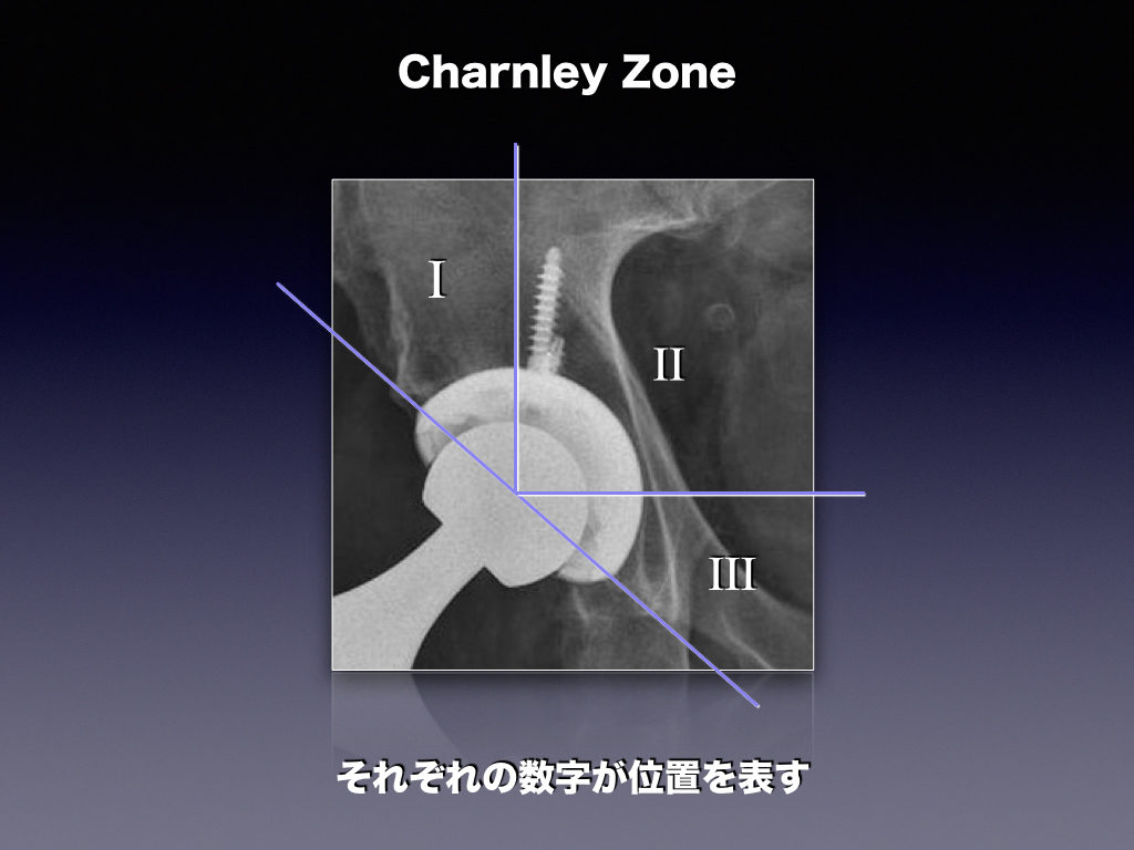 Hip Prosthesis ZoneのCharnley Zone(THA)