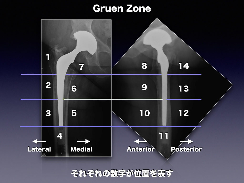 Hip Prosthesis ZoneのGruen Zone(THA)