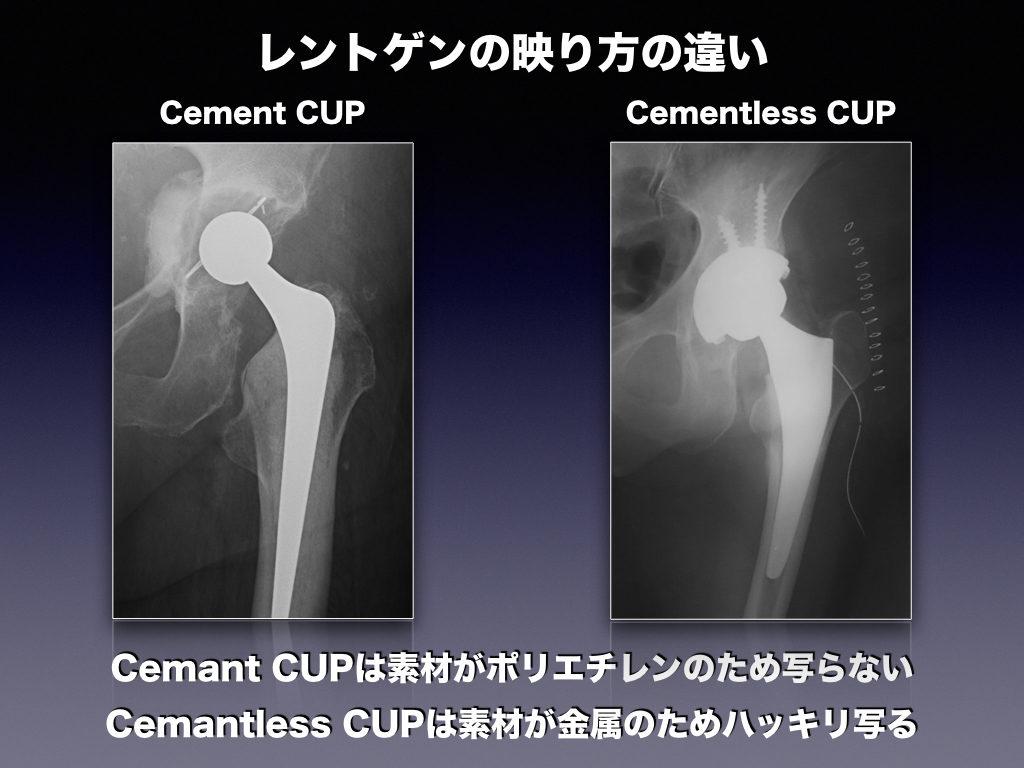 THA-CUPのレントゲンの映り方の違い