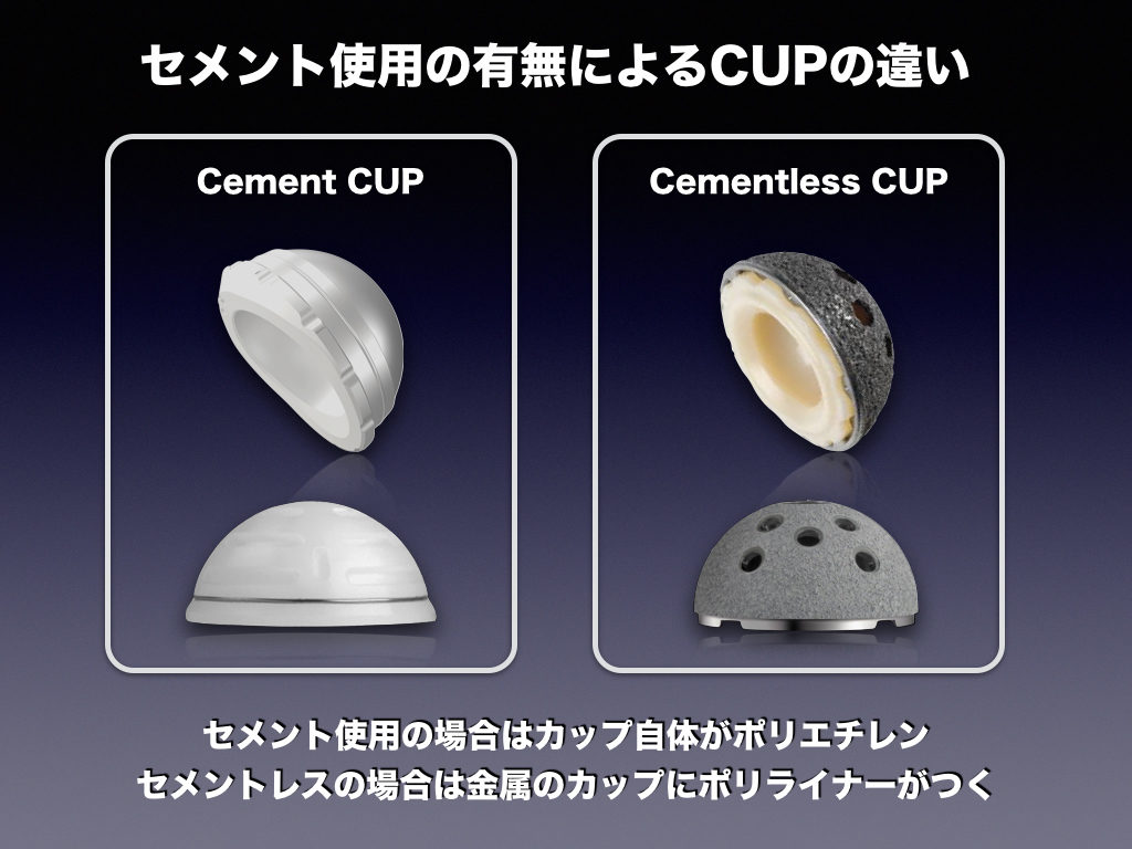 Cement CUP & Cementless CUP tha