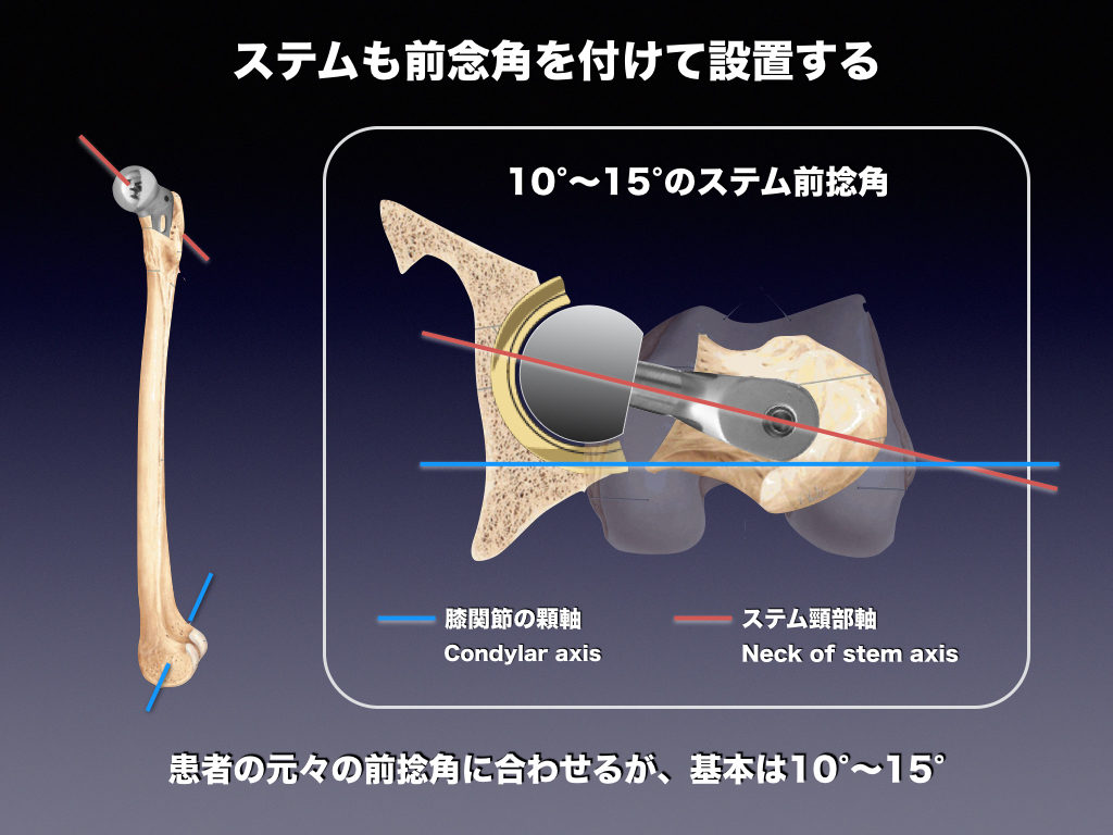 thaステムの股関節前捻角