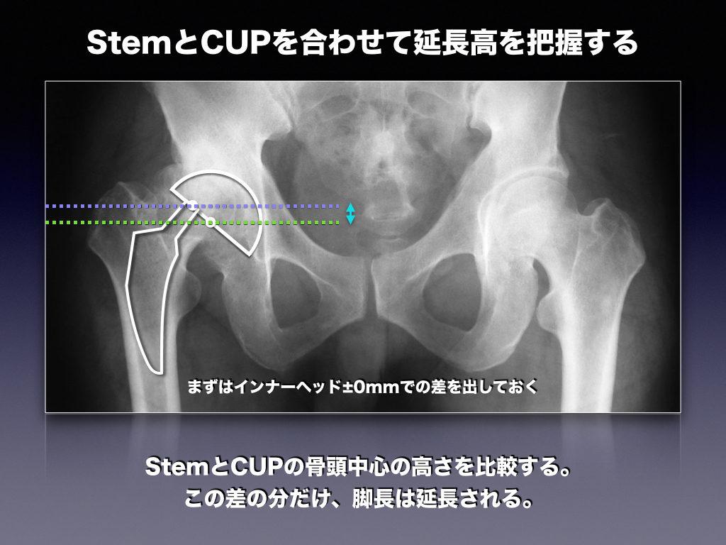 レントゲン上にてStemとCUPのテンプレートにて脚長の延長高を把握する