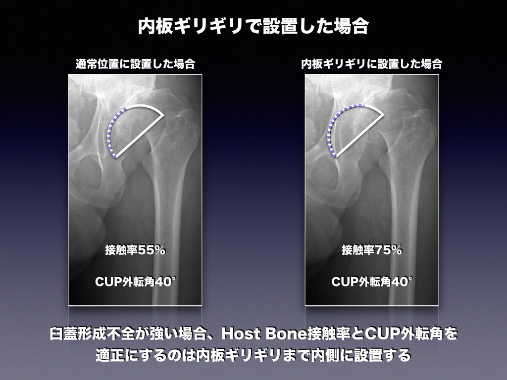 内板ギリギリまで設置した場合のHost Bone接触率の違い