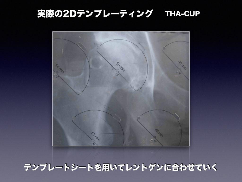 実際の2DテンプレートTHA-CUP