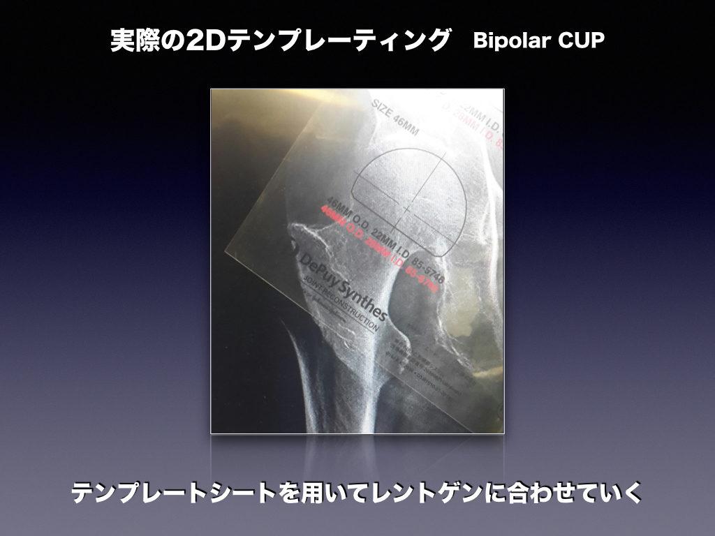 実際BipolarCUPの2Dテンプレート