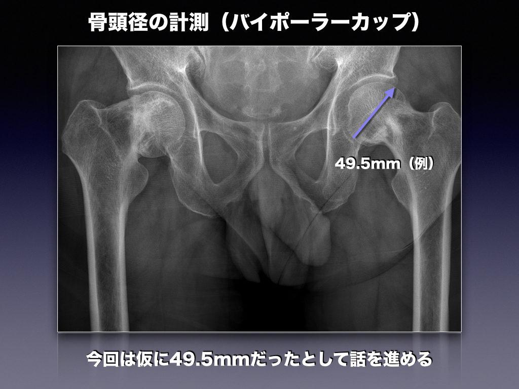 骨頭径の計測(例)