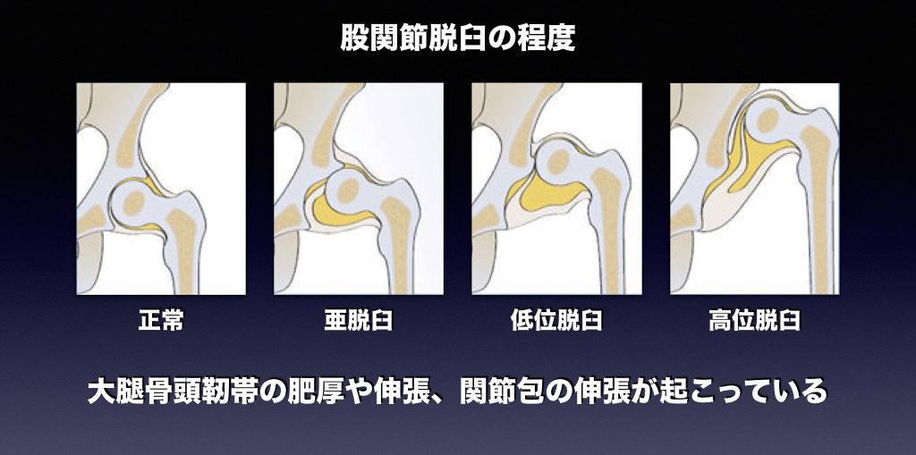 股関節脱臼の程度