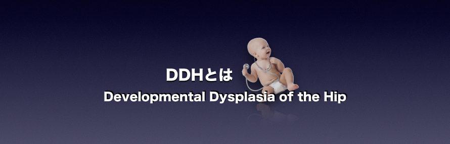 DDHとは 発育成股関節形成不全