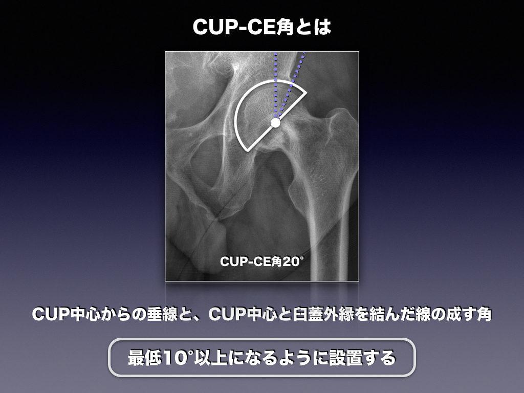 CUP-CE角とは