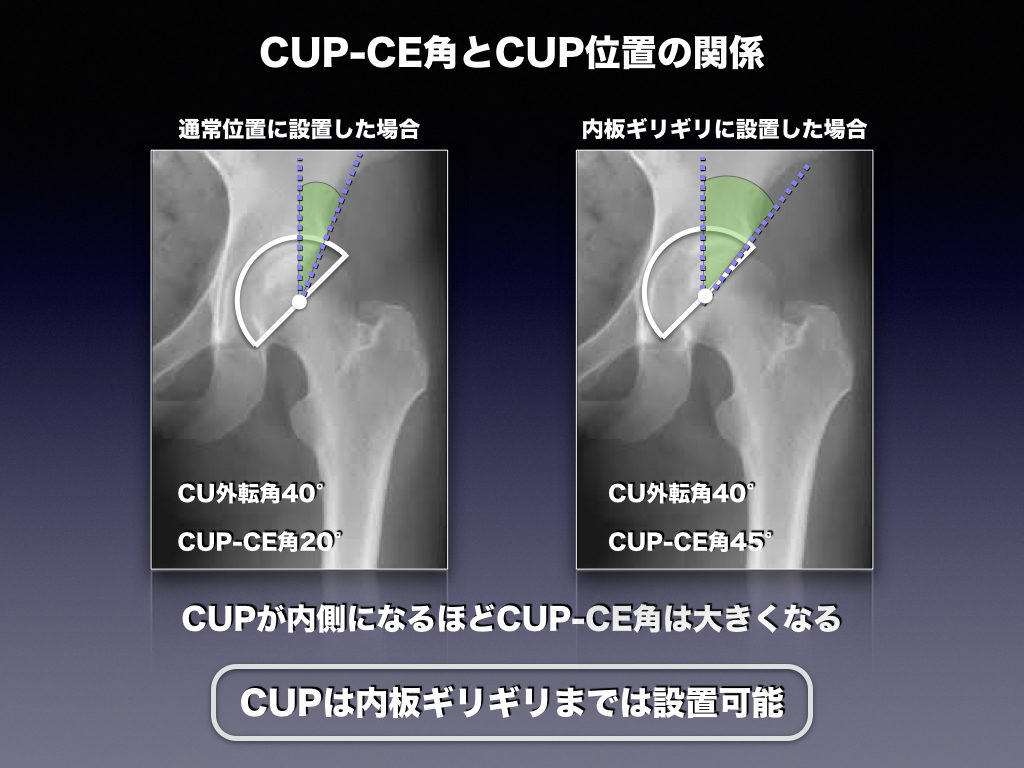 CUP-CE角とCUP位置の関係
